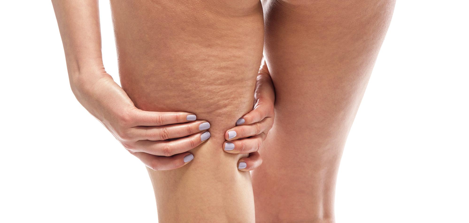 Cellulitis vrije zomer