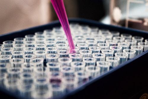 afvallen-via-bloedanalyse