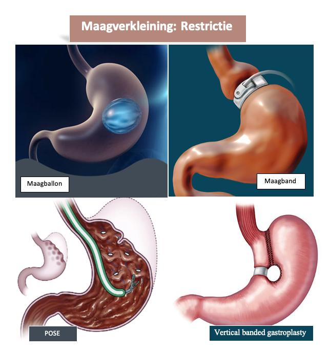 Bij een maagballon, maagband, POSE/APOLLO en Vertical banded gastroplasty is het de bedoeling dat men minder kan eten.
