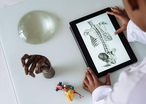 onderzoek naar fybromyalgie