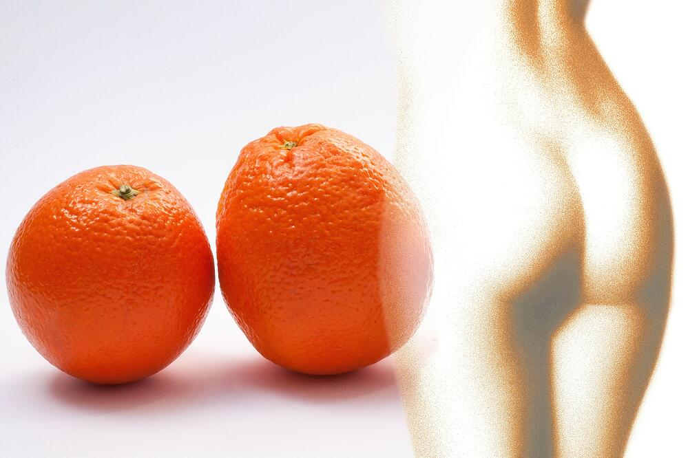 sinaasappel (huid)